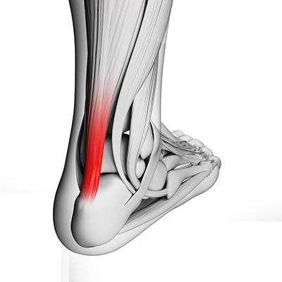 Tendinopathy tendonitis achilles patella