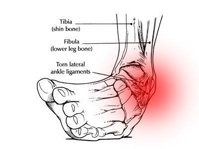 ankle sprain strain injury