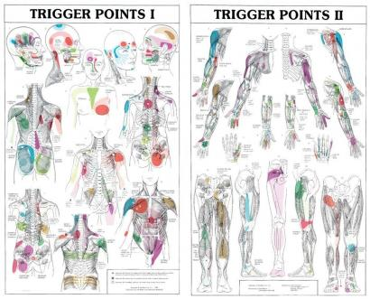 trigger point referred pain dry needling