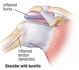 bursitis physical therapy
