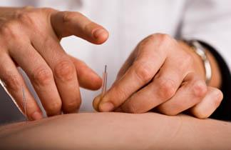 dry needling trigger point referred pain